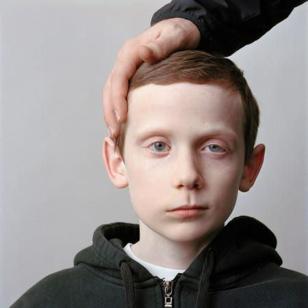 Facial Paralysis Portraits by Sage Sohier (13)