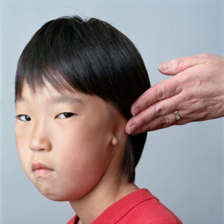 Facial Paralysis Portraits by Sage Sohier (15)