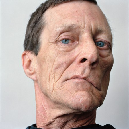 facial paralysis portraits by sage sohier 7 Facial Paralysis Portraits by Sage Sohier